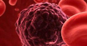 چینی پودے سے خون کے کینسرکے علاج میں بڑی کامیابی