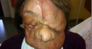 پراسرار بیماری میں مبتلا خاتون کے چہرے کی کامیاب پیوندکاری