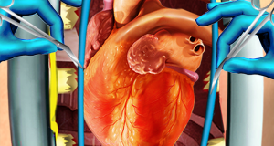 سرجری کے بغیر دل کے سوراخ بند