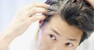 تیزی سے سفید ہوتے بال امراضِ قلب کی علامت