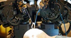 صرف 2 منٹ میں دماغ کا آپریشن کرنے والا روبوٹ سرجن