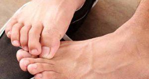 آپ کے پاؤں کئی امراض کی نشاندہی کرسکتے ہیں