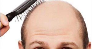 یہ غذائیں کھائیے؛ کمزور بالوں اور گنج پن سے نجات پائیے