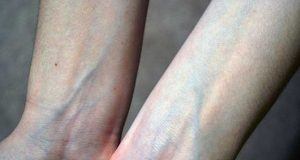 ہاتھ کی رگوں میں خون نیلا کیوں نظر آتا ہے؟