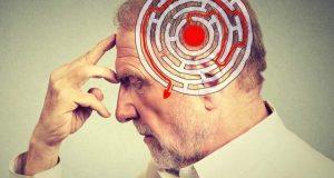 گھبراہٹ اور بے چینی الزائیمر کی اولین علامات