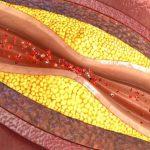 دل کی رگوں کو صاف کرنے والے انجکشن میں اہم کامیابی
