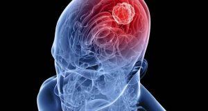 پولیو وائرس دماغی کینسر کے علاج میں مددگار ثابت