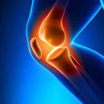 ملکی تاریخ میں پہلی بار بغیرآپریشن گھٹنوں کی بیماری کا علاج دریافت