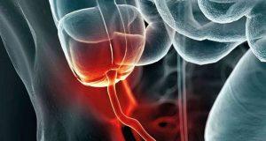 دماغی مرض پارکنسن کا تعلق اپینڈکس سے بھی ہوسکتا ہے